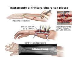 FR. PLACCA ULNA