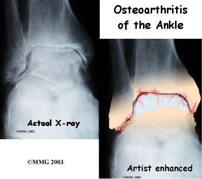 ankle_osteoarthritis_diagnosis01