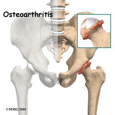 protesica ginocchio, anca, spalla