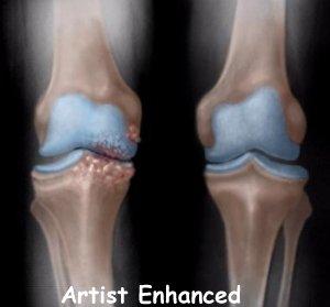 knee_osteoarth_diagnosis01