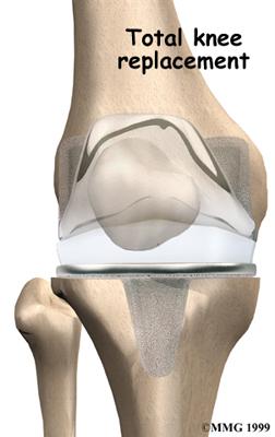 knee_osteoarth_surgery03
