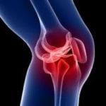 lesione cartilaginea