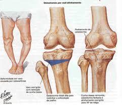 osteotomia ginocchio 2
